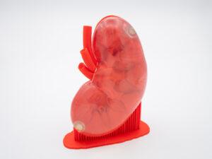 光造形3Dプリンターで造形した腎臓模型